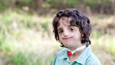 Photo of Treacher – Collins syndrom – položili jsme pár otázek Zbyňkovi Kašpárkovi